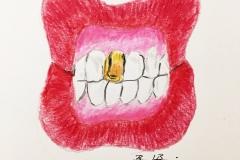 17_Teeth